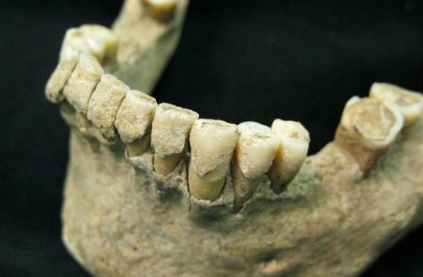 o_903267 Зубы помогут установить причину смерти человека